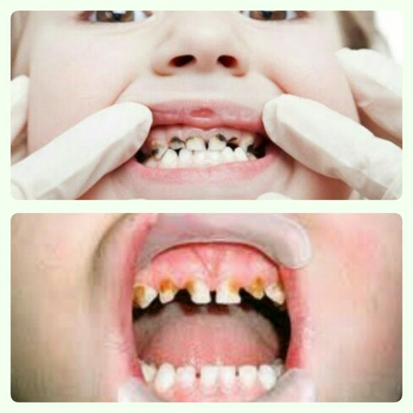 Full Mouth Oral Rehabilitation