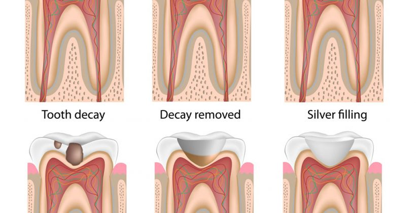 A comprehensive overview of pediatric dental treatment for tooth decay in kids