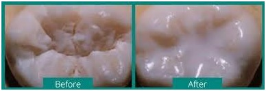 SEAL OUT TOOTH DECAY(Dental Sealants)